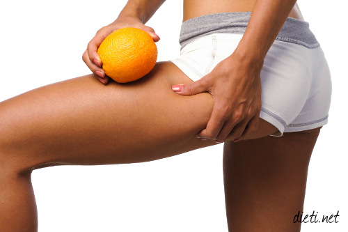 Портокалова кожа
